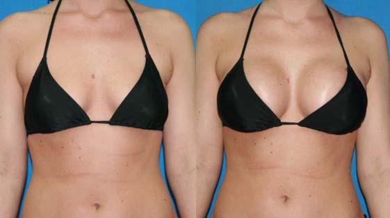 Die Rehabilitierung nach der Operation nach der Abtragung der Brust